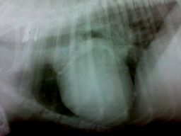 Cardiomegalia en radiografia