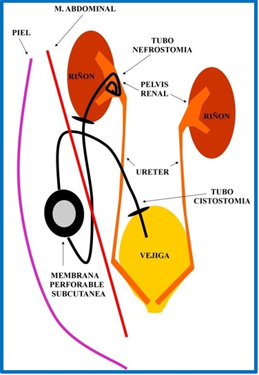 Bypass ureteral perro gato obstrucion estenosis ureter