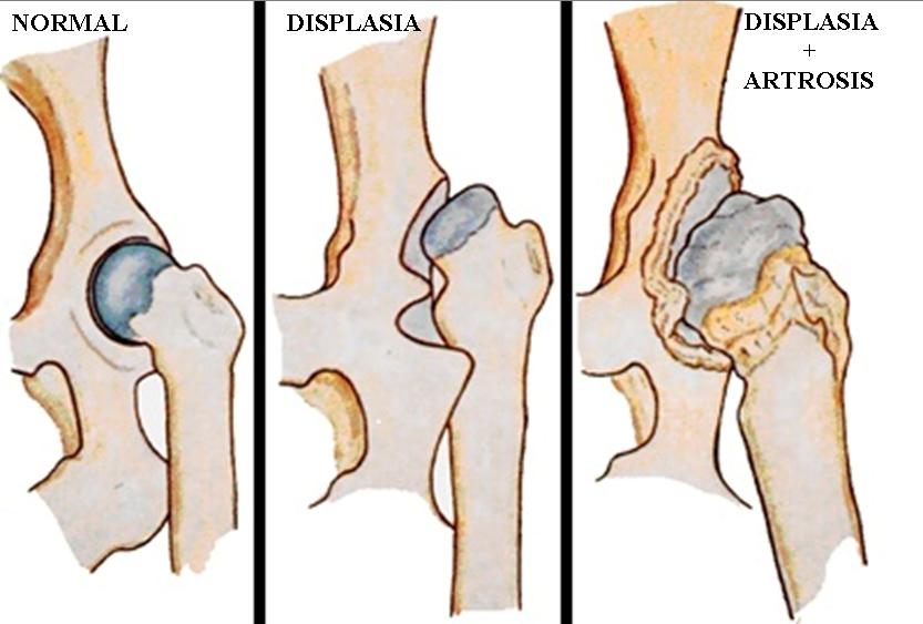 displasia de maluc en el gos, artrosis de maluc, dolor articular en el gos